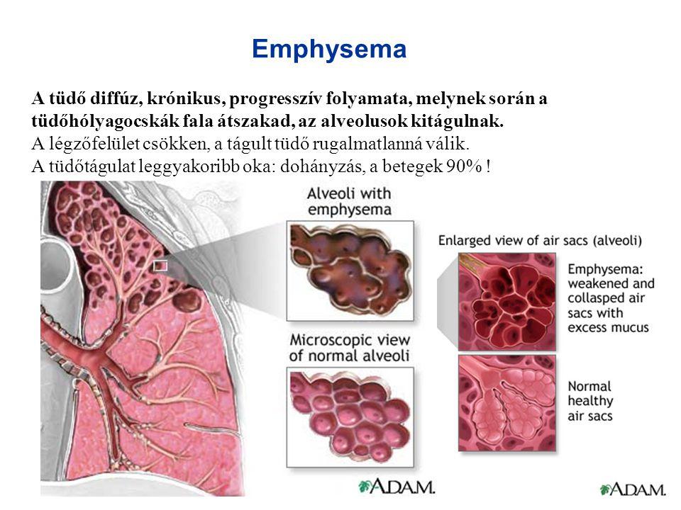 Emphysema A tüdő diffúz, krónikus, progresszív folyamata, melynek során a tüdőhólyagocskák fala átszakad, az alveolusok kitágulnak.