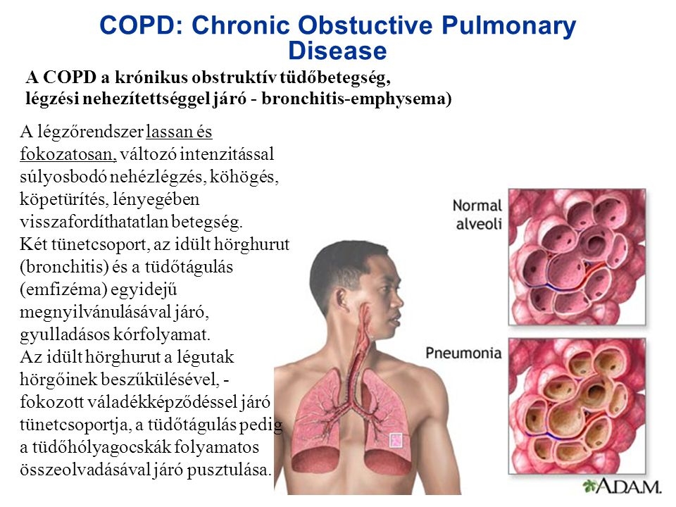 COPD: Chronic Obstuctive Pulmonary Disease