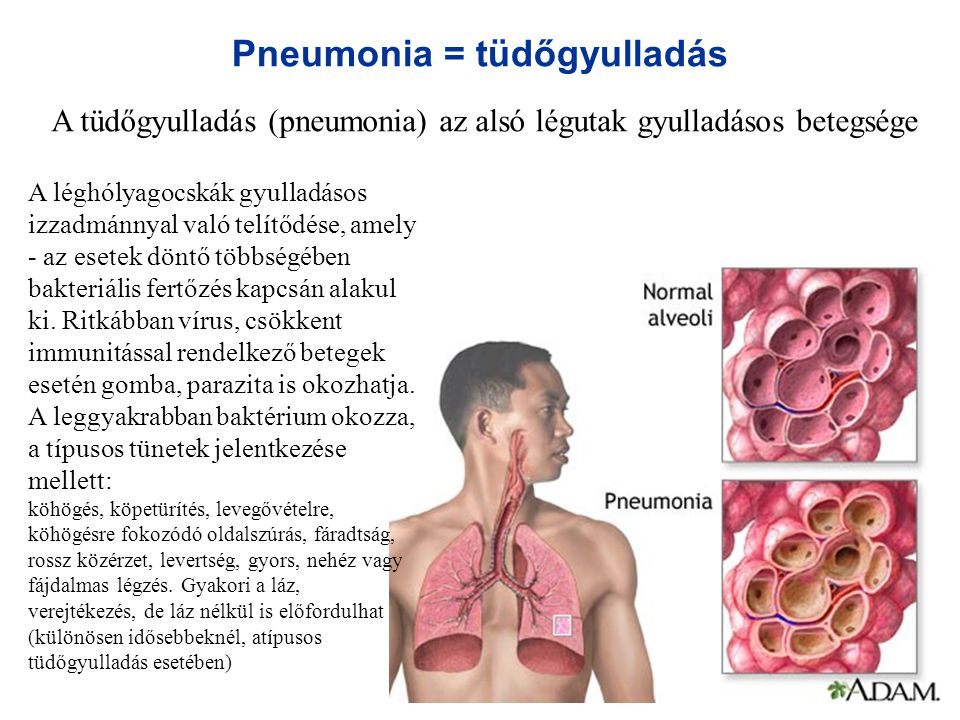 Pneumonia = tüdőgyulladás