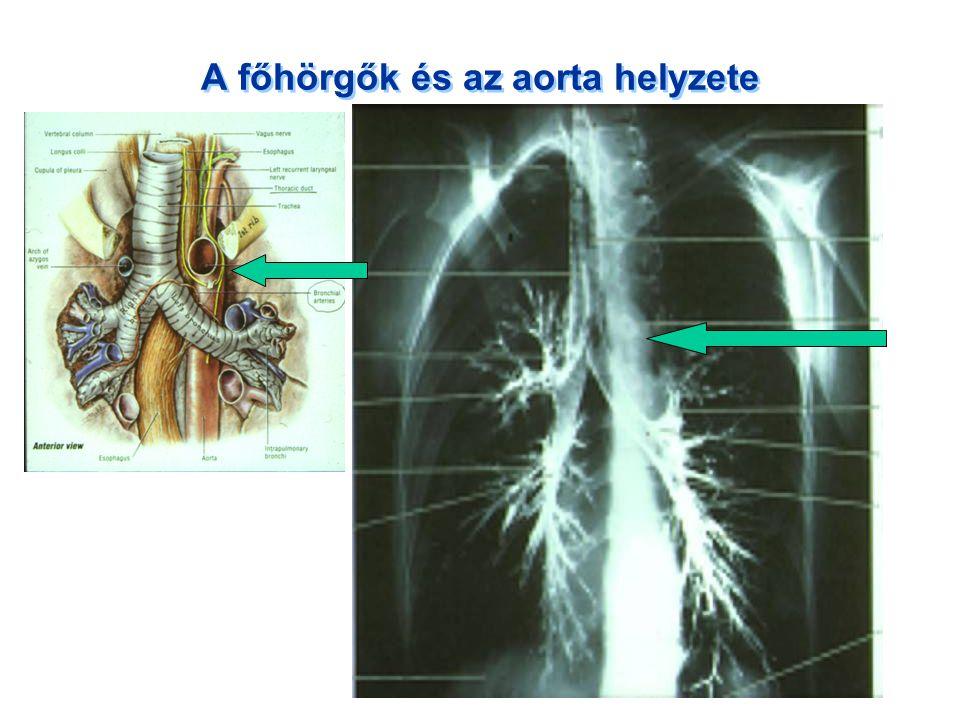 A főhörgők és az aorta helyzete