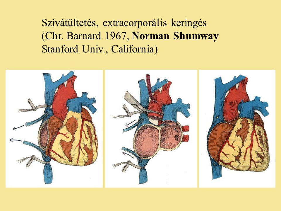 Szívátültetés, extracorporális keringés