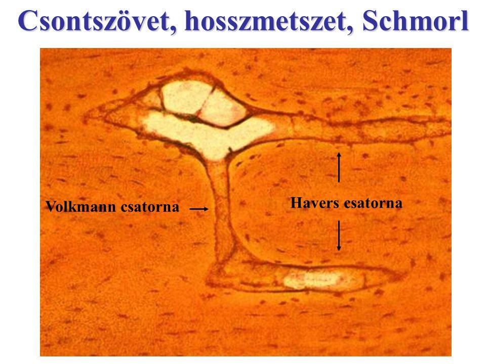 Csontszövet, hosszmetszet, Schmorl
