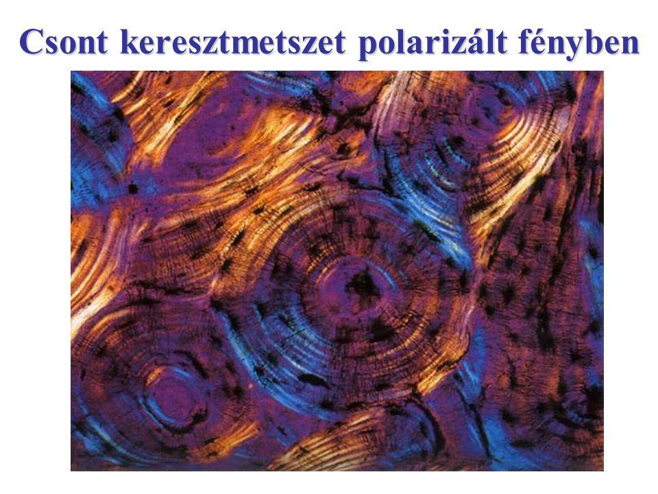 Csont keresztmetszet polarizált fényben