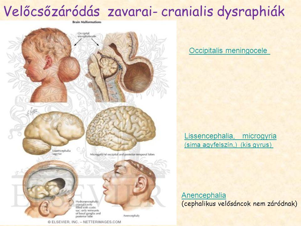 Velőcsőzáródás zavarai- cranialis dysraphiák