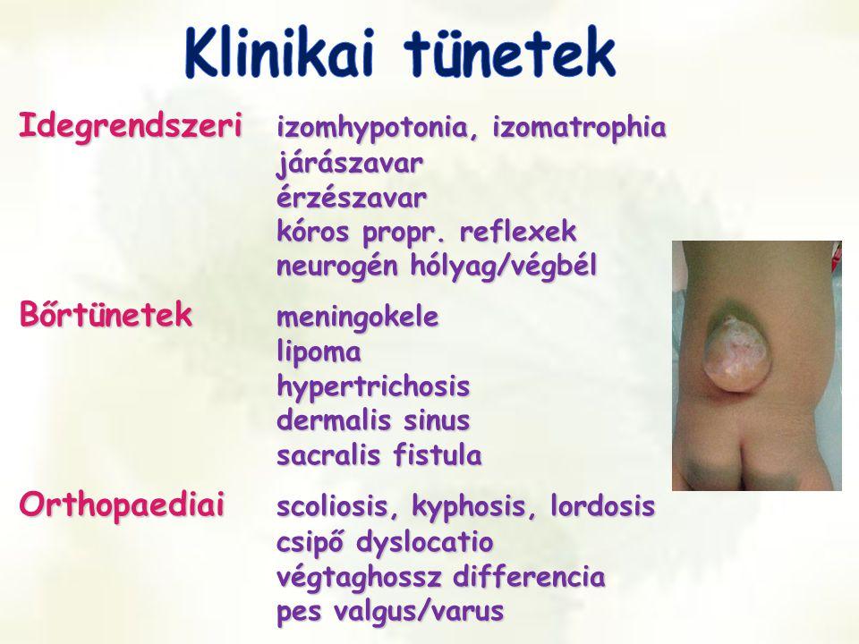 Klinikai tünetek Idegrendszeri izomhypotonia, izomatrophia