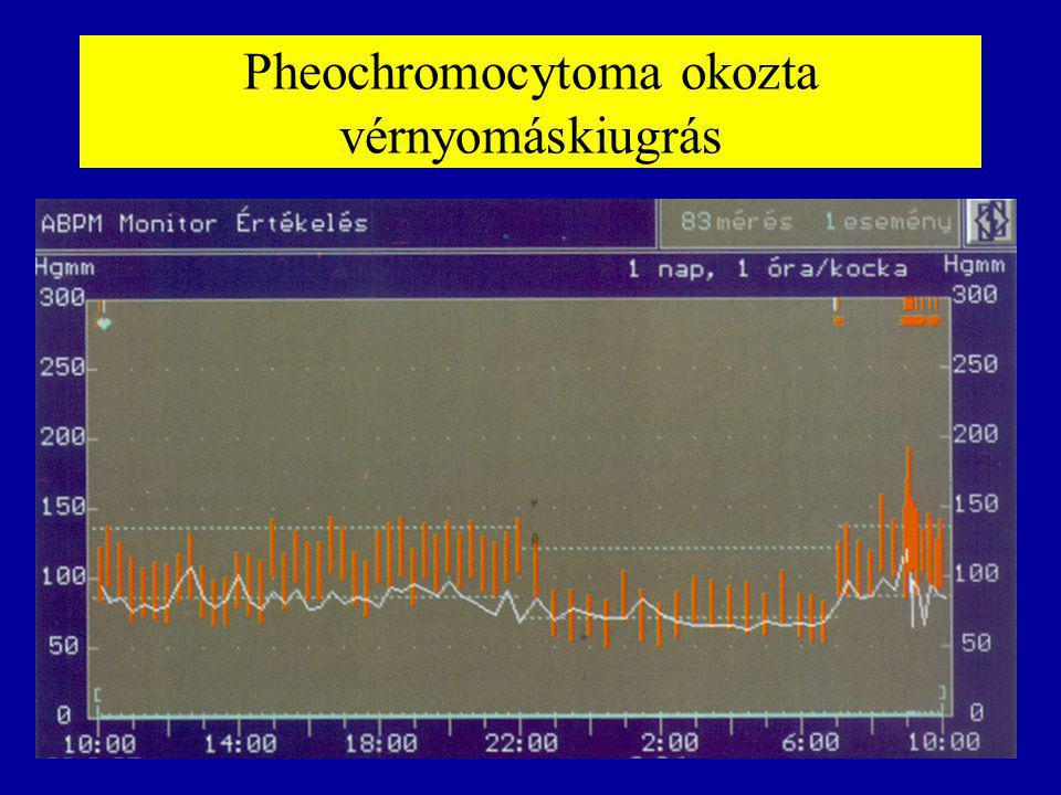 Pheochromocytoma okozta vérnyomáskiugrás