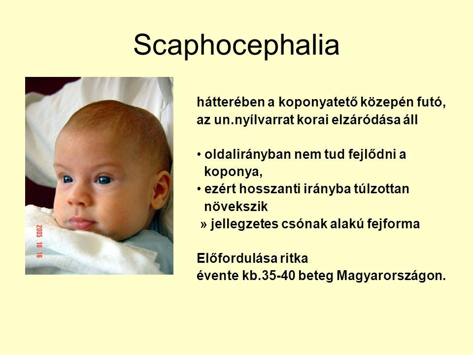 Scaphocephalia hátterében a koponyatető közepén futó, az un.nyílvarrat korai elzáródása áll. oldalirányban nem tud fejlődni a.