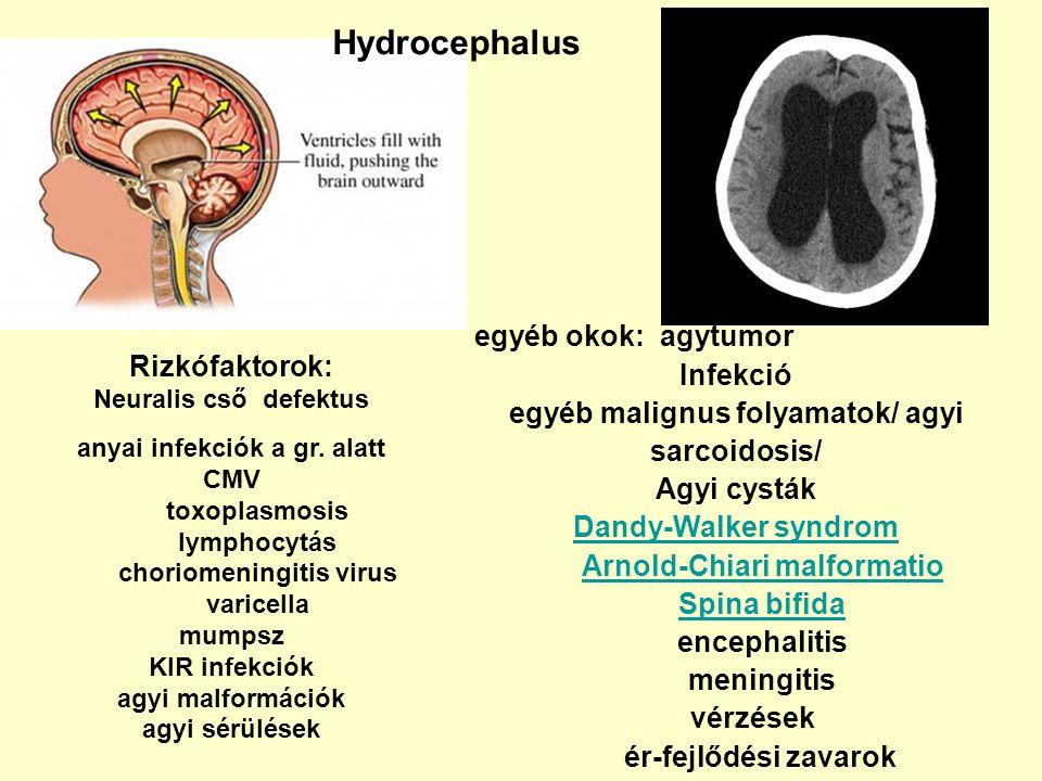 Hydrocephalus egyéb okok: agytumor Infekció Rizkófaktorok: