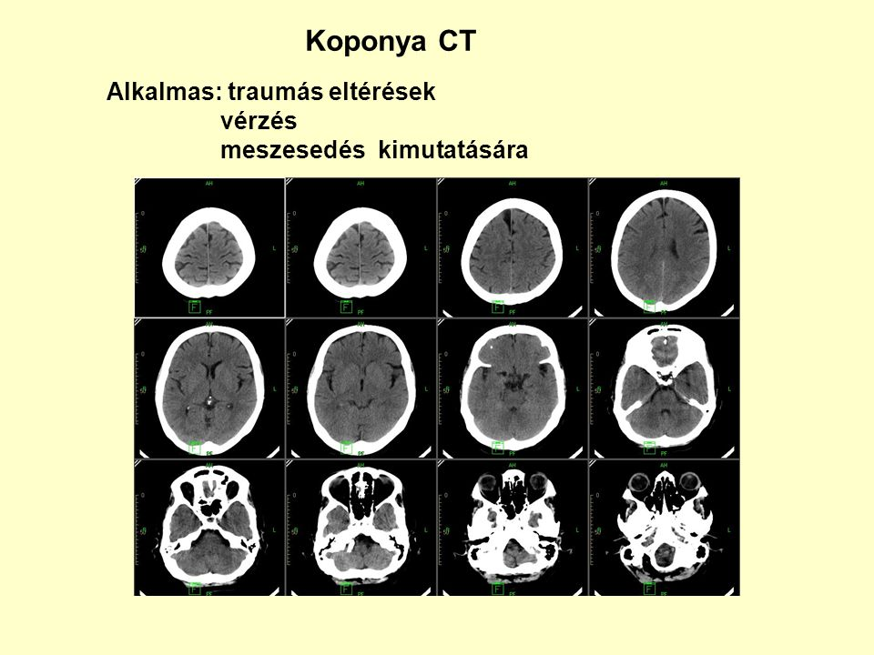 Koponya CT Alkalmas: traumás eltérések vérzés meszesedés kimutatására