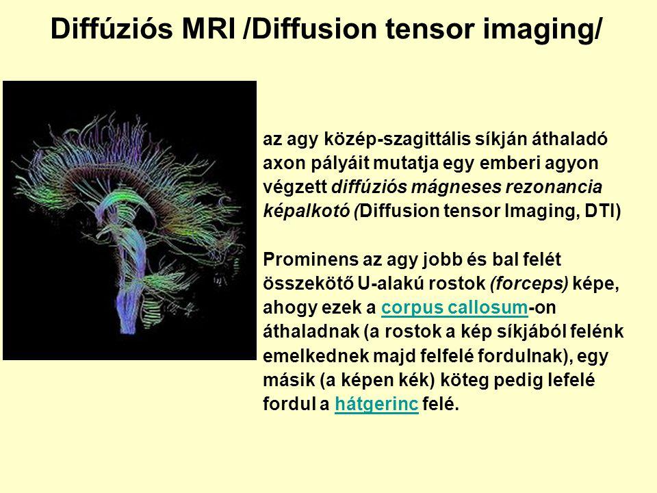 Diffúziós MRI /Diffusion tensor imaging/