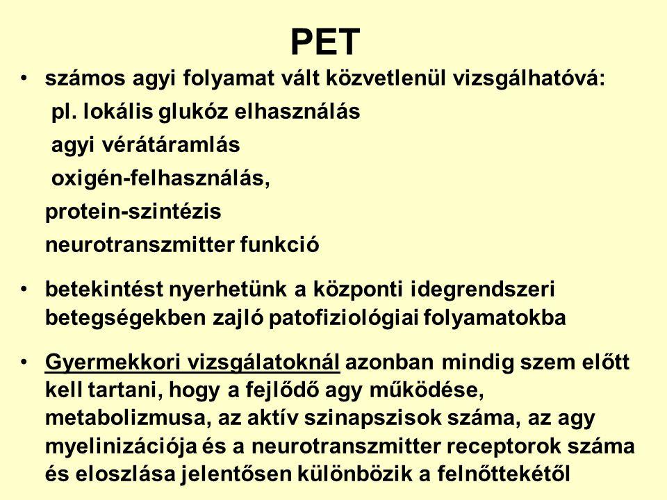 PET számos agyi folyamat vált közvetlenül vizsgálhatóvá: