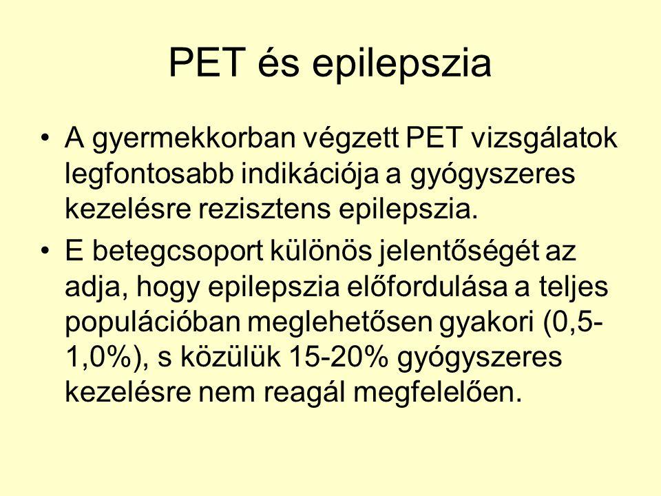 PET és epilepszia A gyermekkorban végzett PET vizsgálatok legfontosabb indikációja a gyógyszeres kezelésre rezisztens epilepszia.