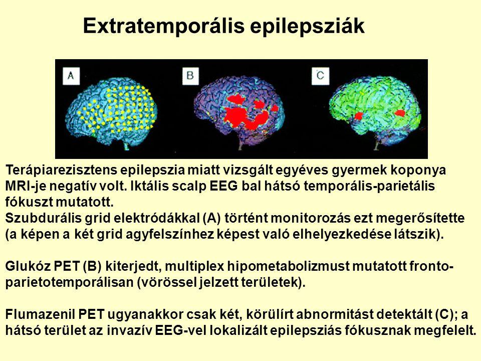 Extratemporális epilepsziák