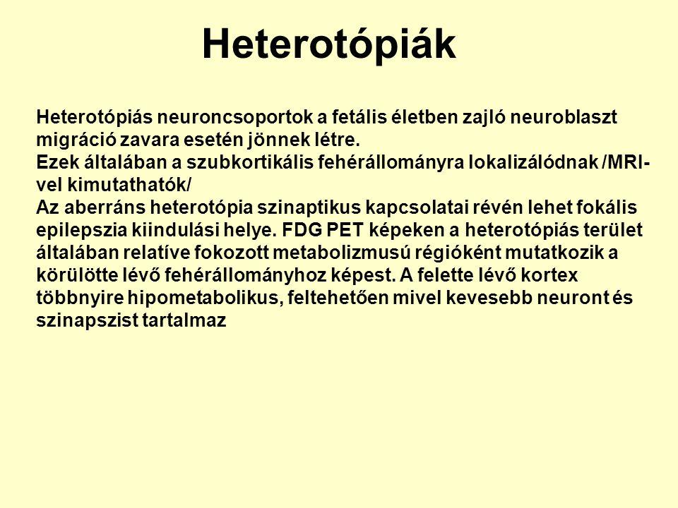 Heterotópiák Heterotópiás neuroncsoportok a fetális életben zajló neuroblaszt migráció zavara esetén jönnek létre.