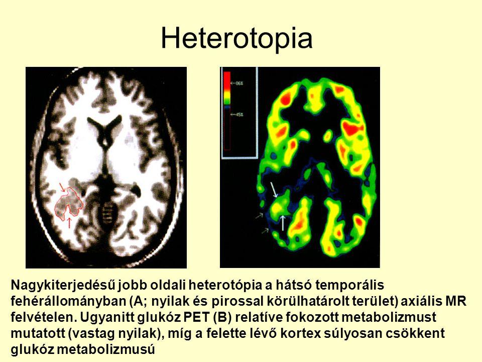 Heterotopia