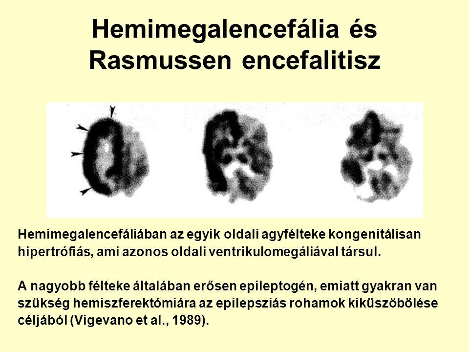 Hemimegalencefália és Rasmussen encefalitisz