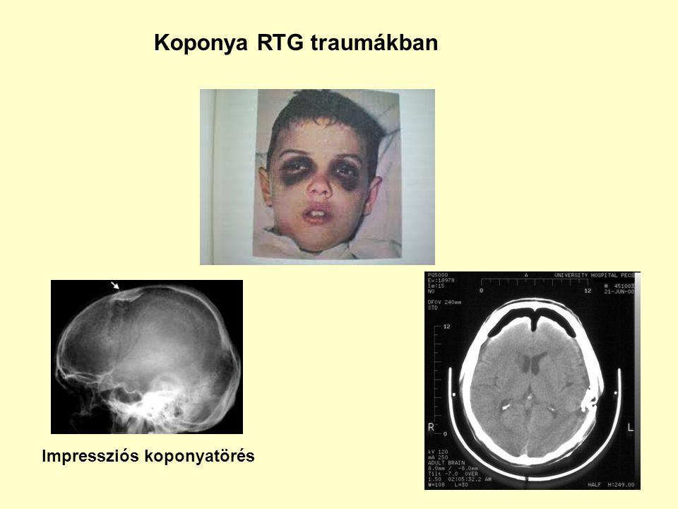 Koponya RTG traumákban