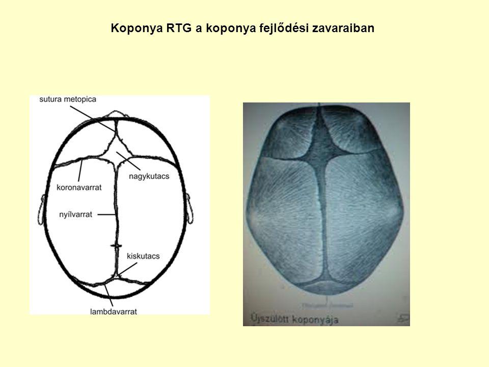 Koponya RTG a koponya fejlődési zavaraiban