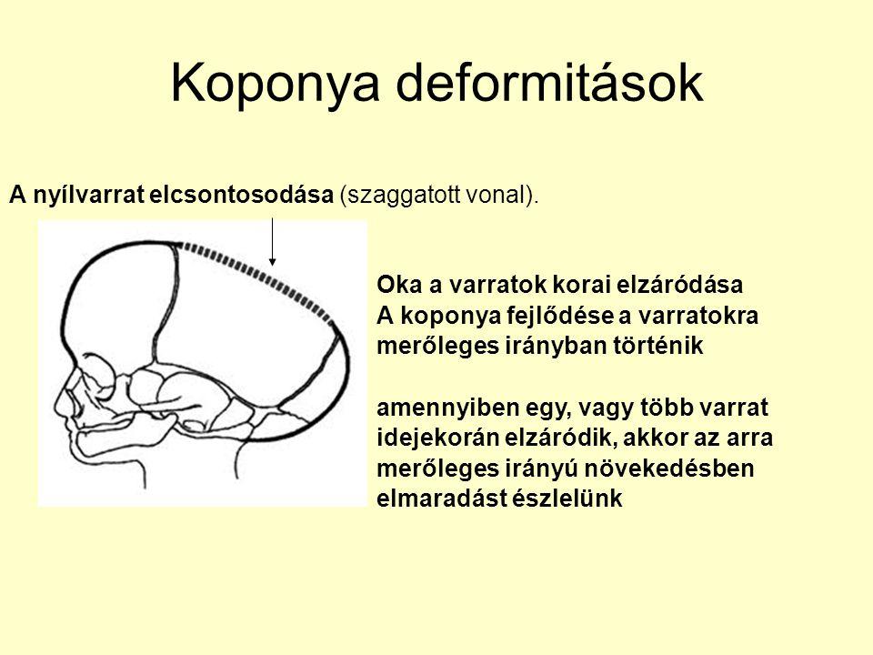 Koponya deformitások A nyílvarrat elcsontosodása (szaggatott vonal).