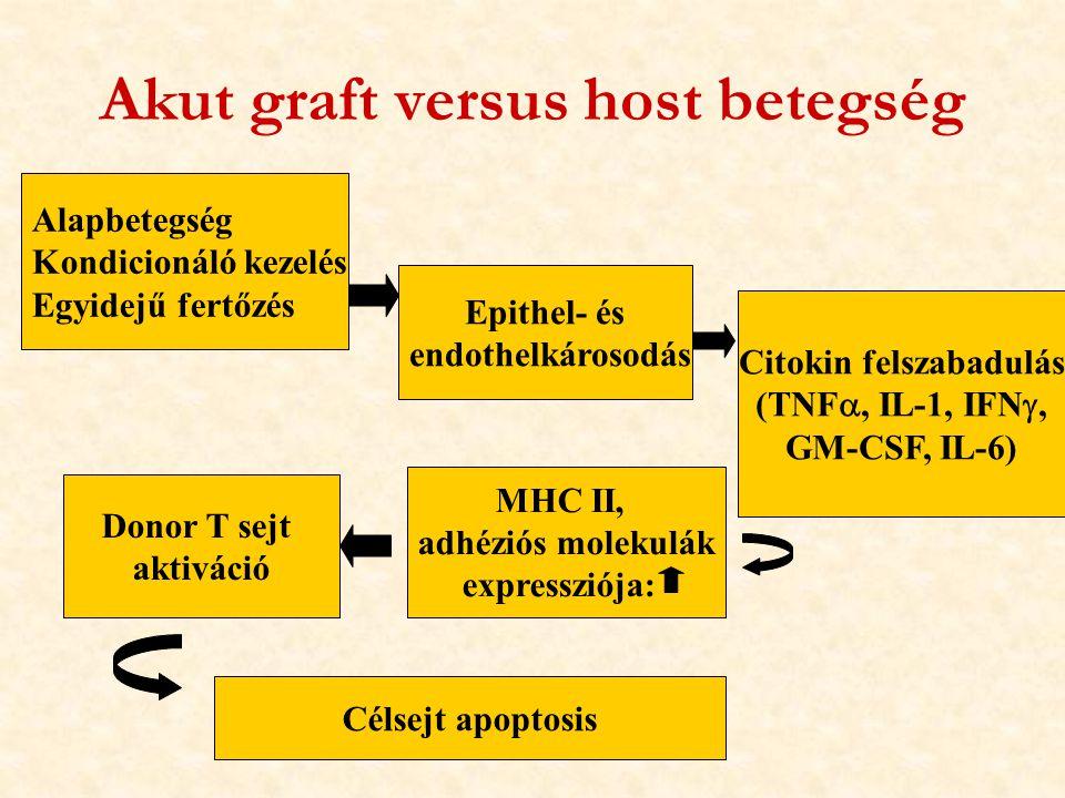 Akut graft versus host betegség