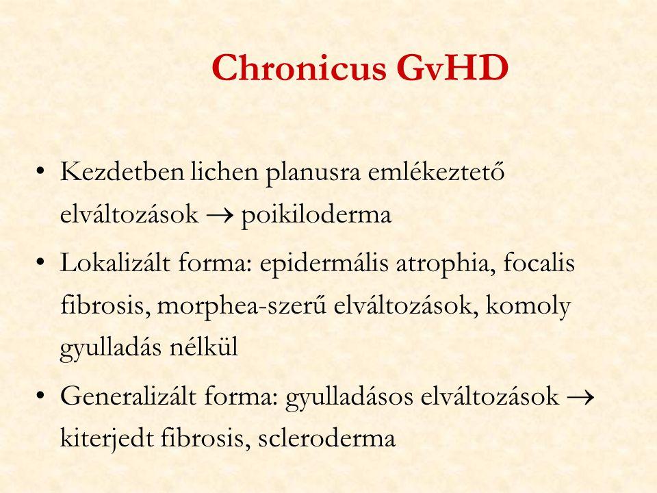 Chronicus GvHD Kezdetben lichen planusra emlékeztető elváltozások  poikiloderma.