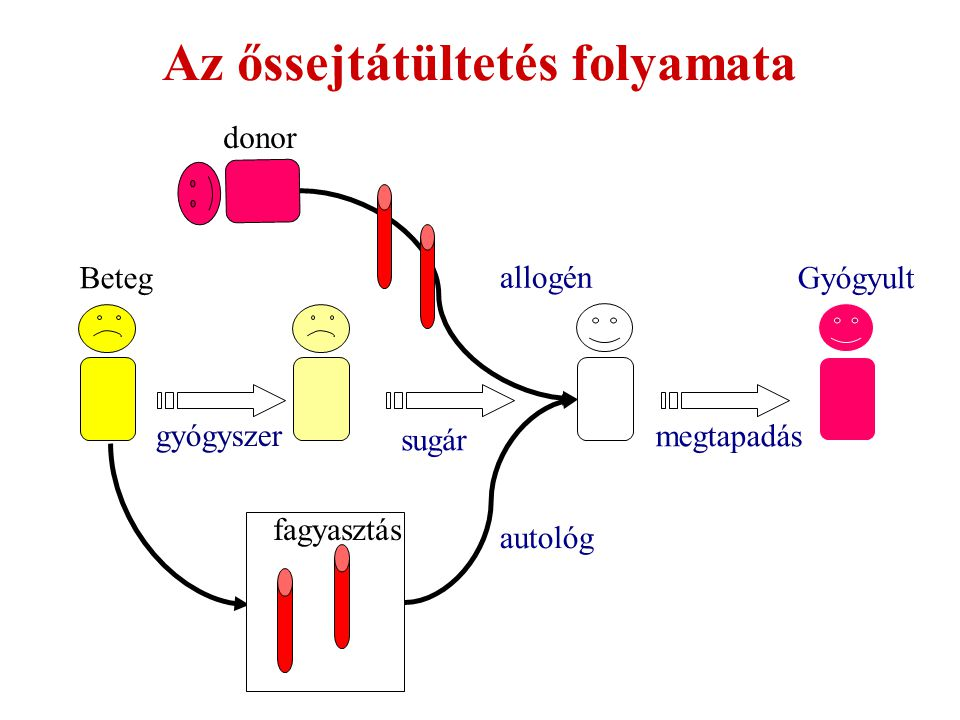 Az őssejtátültetés folyamata
