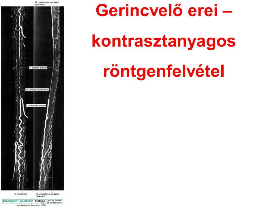 Gerincvelő erei – kontrasztanyagos röntgenfelvétel