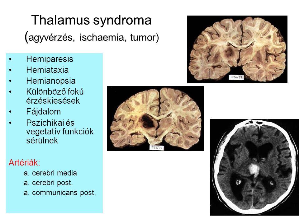 Thalamus syndroma (agyvérzés, ischaemia, tumor)