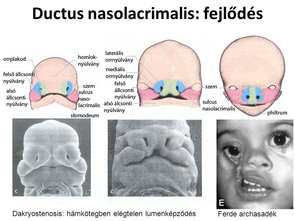 Ductus nasolacrimalis: fejlődés