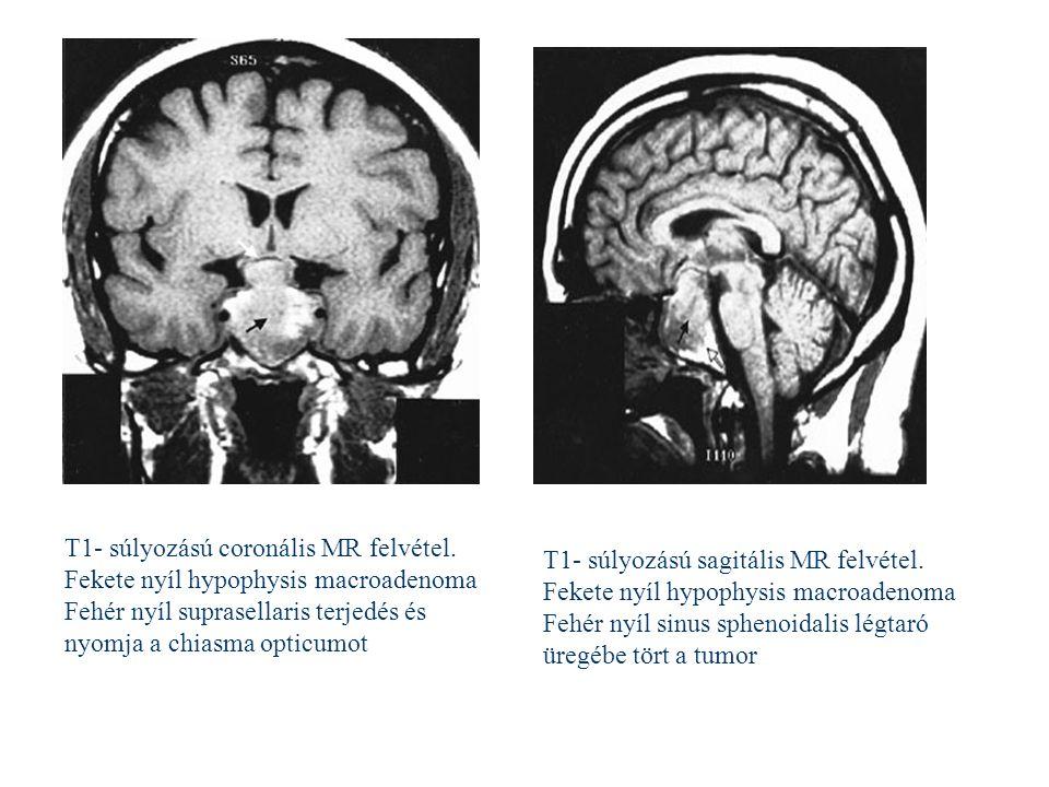 Fekete nyíl hypophysis macroadenoma