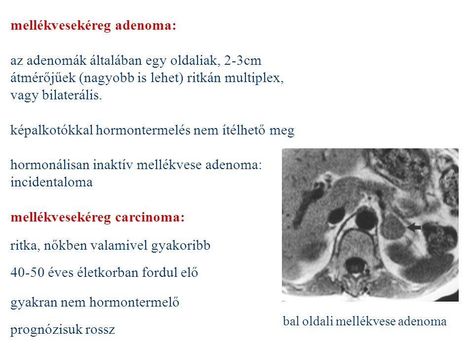 mellékvesekéreg adenoma: