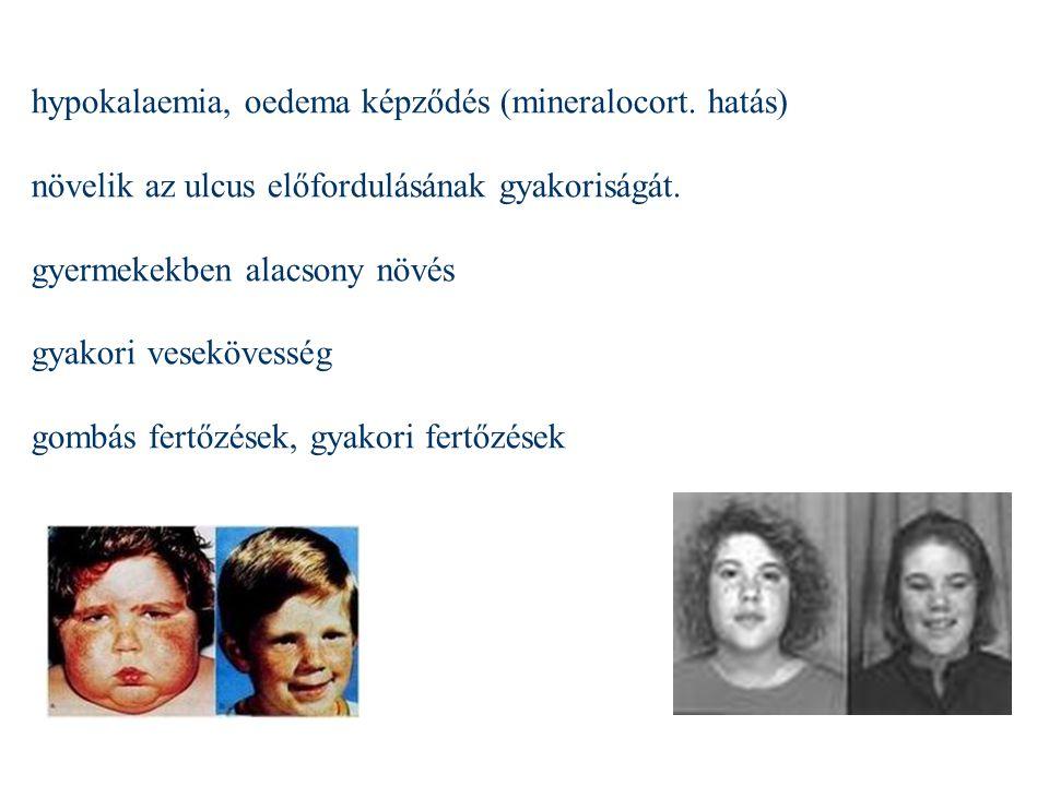 hypokalaemia, oedema képződés (mineralocort. hatás)
