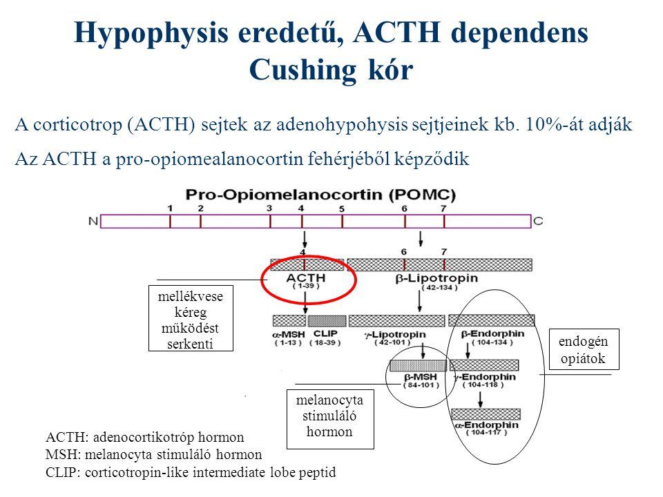 Hypophysis eredetű, ACTH dependens Cushing kór