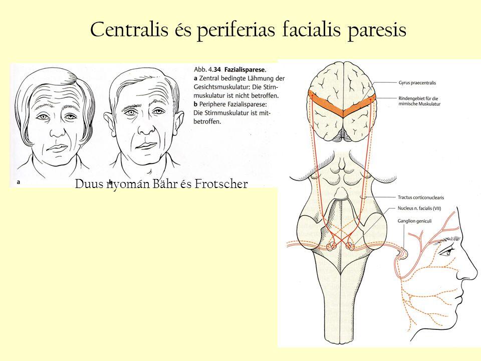 Centralis és periferias facialis paresis