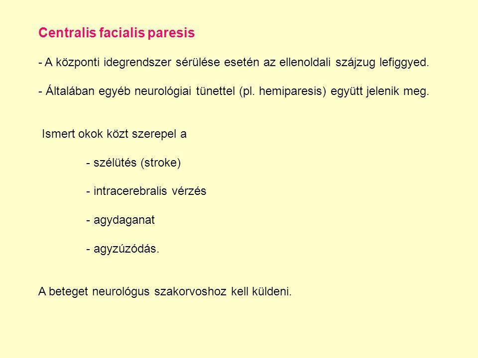 Centralis facialis paresis