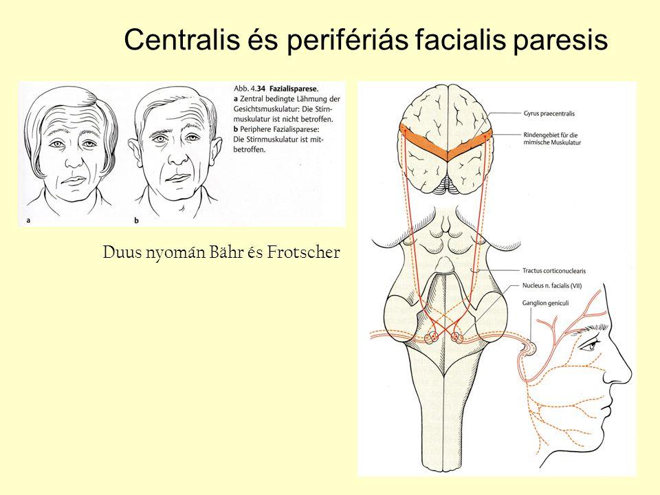 Centralis és perifériás facialis paresis