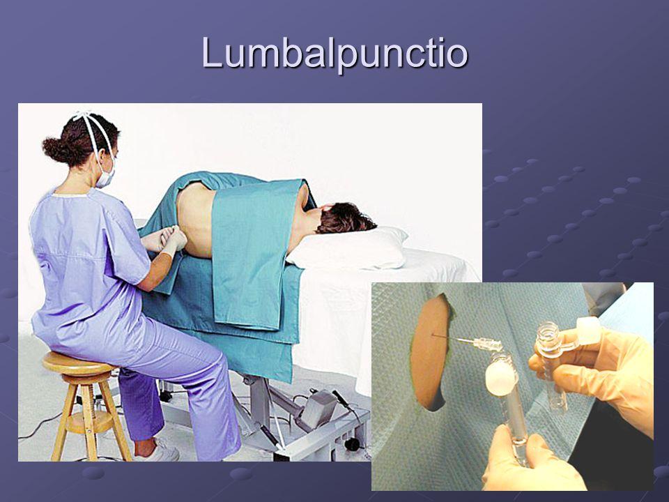 Lumbalpunctio