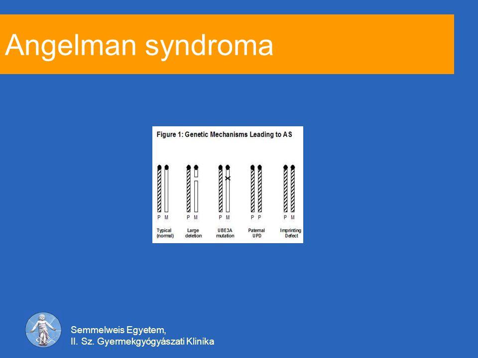 Angelman syndroma Semmelweis Egyetem,