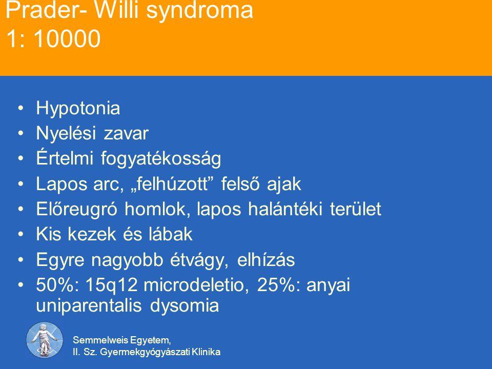 Prader- Willi syndroma 1: 10000