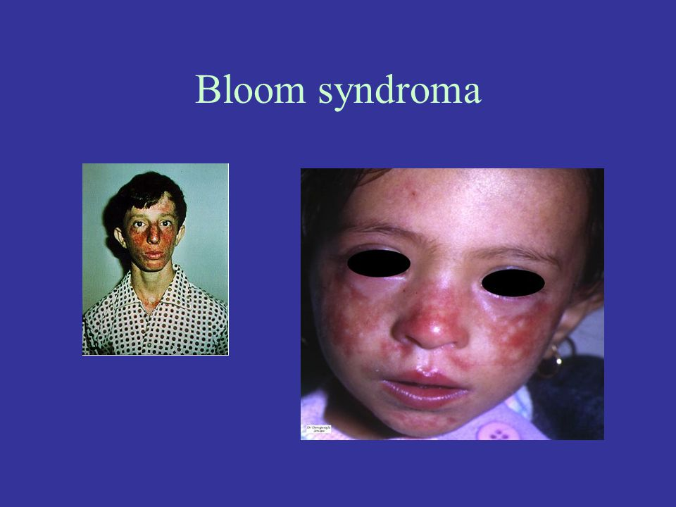 Bloom syndroma