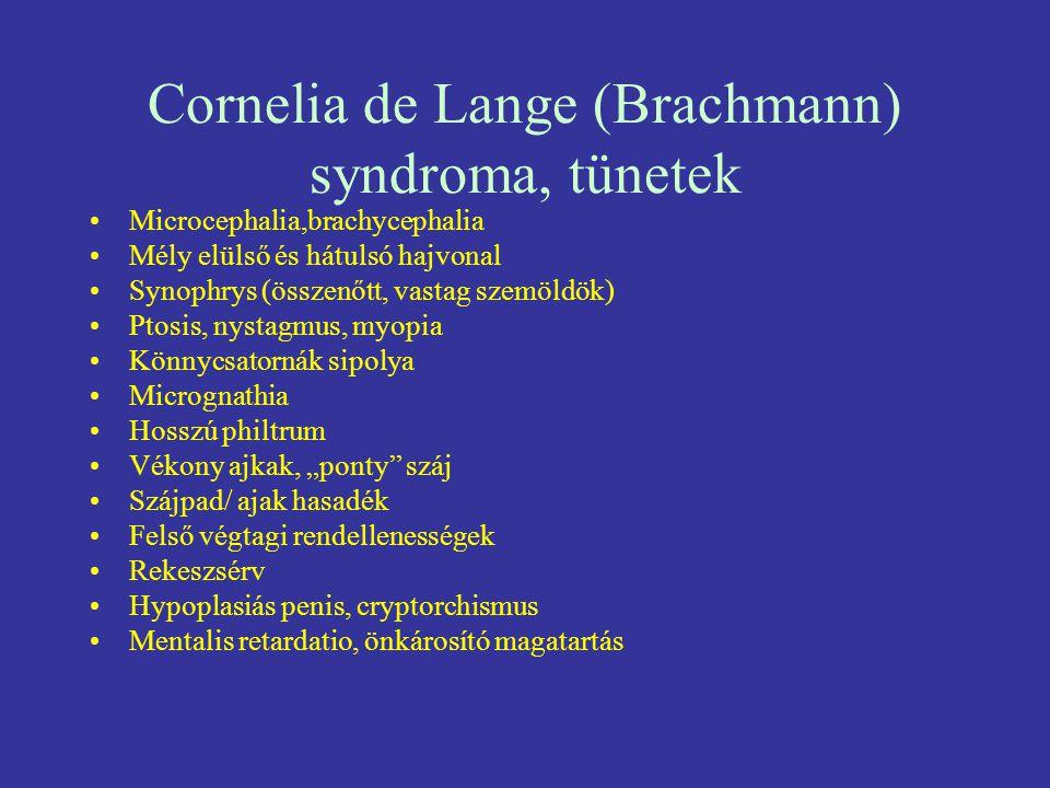 Cornelia de Lange (Brachmann) syndroma, tünetek