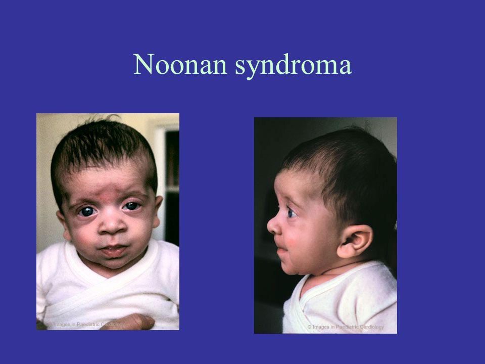Noonan syndroma