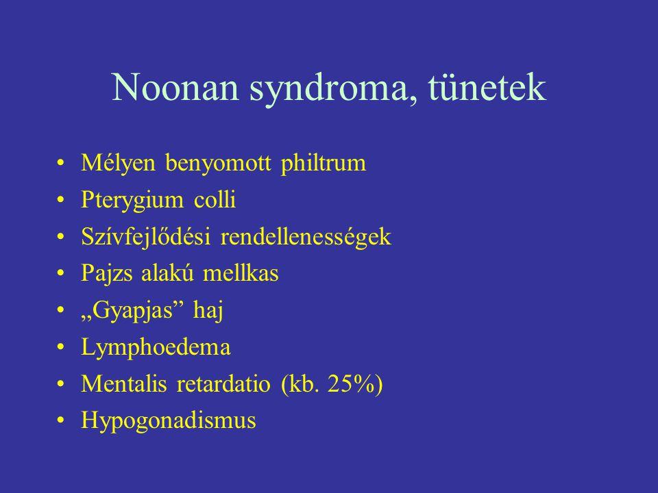 Noonan syndroma, tünetek