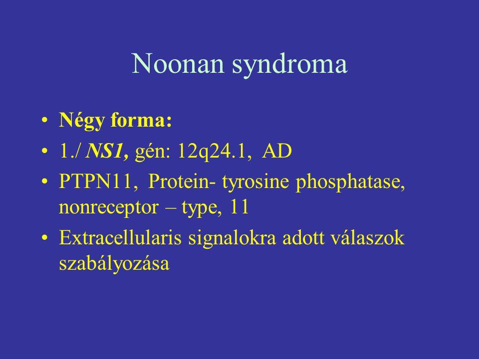 Noonan syndroma Négy forma: 1./ NS1, gén: 12q24.1, AD