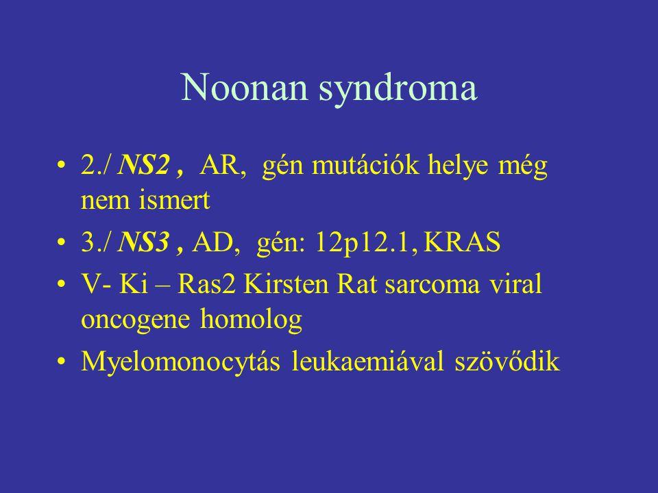 Noonan syndroma 2./ NS2 , AR, gén mutációk helye még nem ismert
