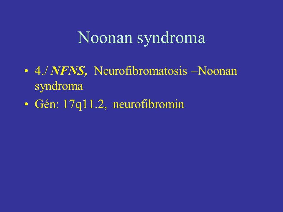Noonan syndroma 4./ NFNS, Neurofibromatosis –Noonan syndroma