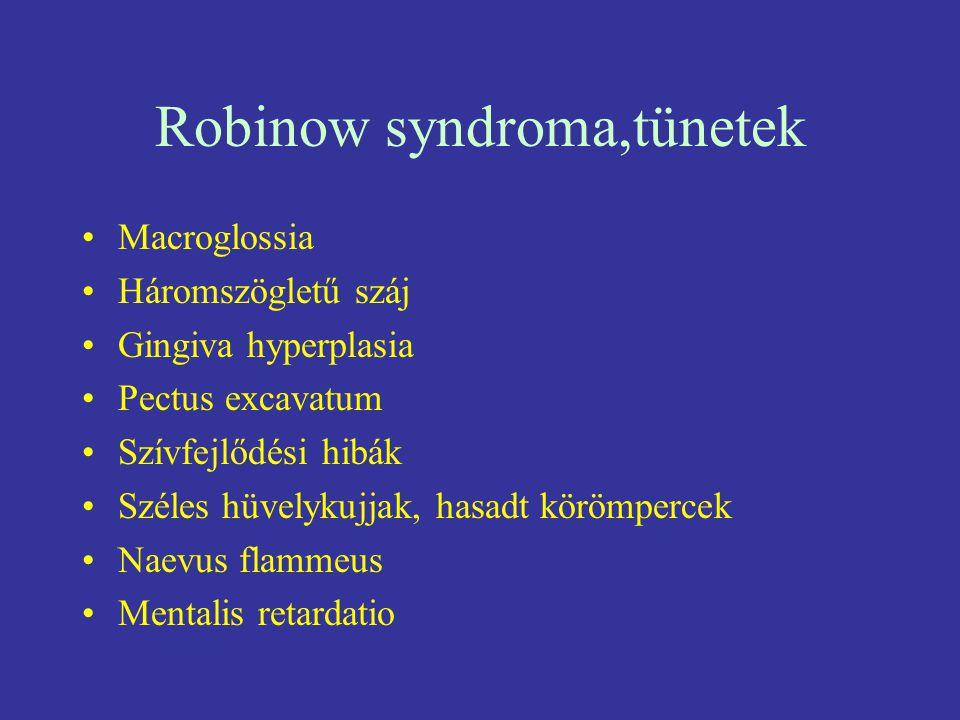 Robinow syndroma,tünetek