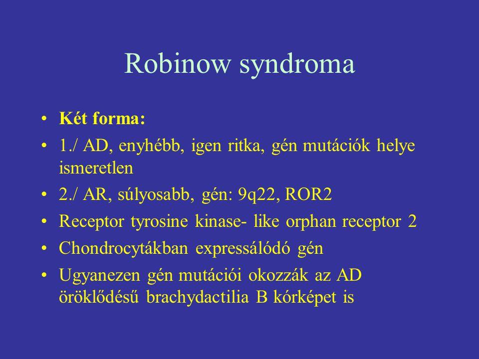 Robinow syndroma Két forma: