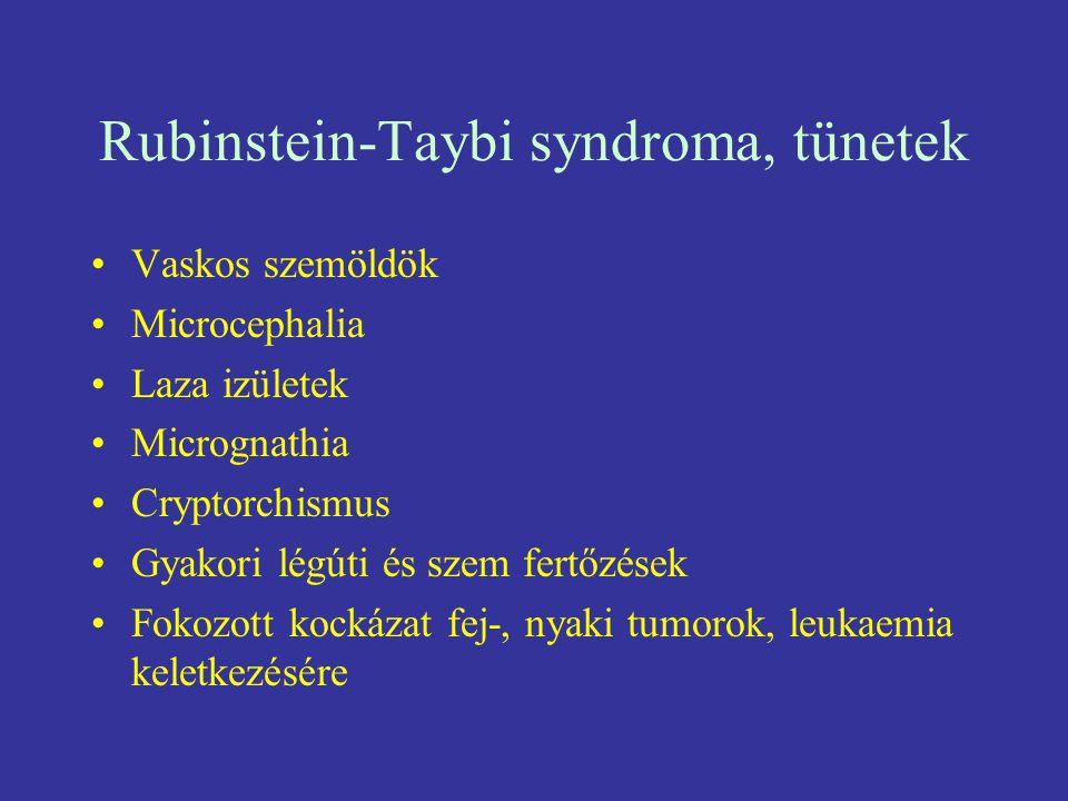 Rubinstein-Taybi syndroma, tünetek