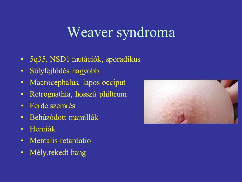 Weaver syndroma 5q35, NSD1 mutációk, sporadikus Súlyfejlődés nagyobb